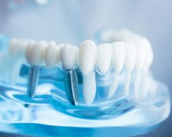 4 Benefits of Getting Dental Implants