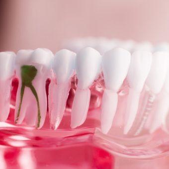 4 Simple Benefits of Getting Dental Implants