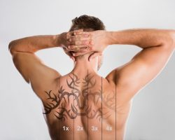 4 Signs of a Good Tattoo Removal Clinic