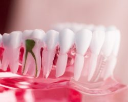 4 Simple Benefits of Getting Dental Implants